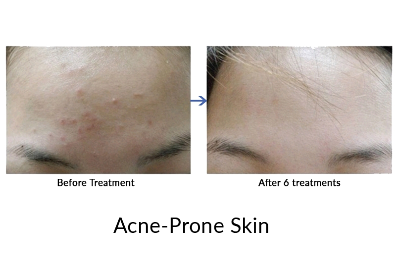 Forehead Acne : 13 Tips To Prevent Acne