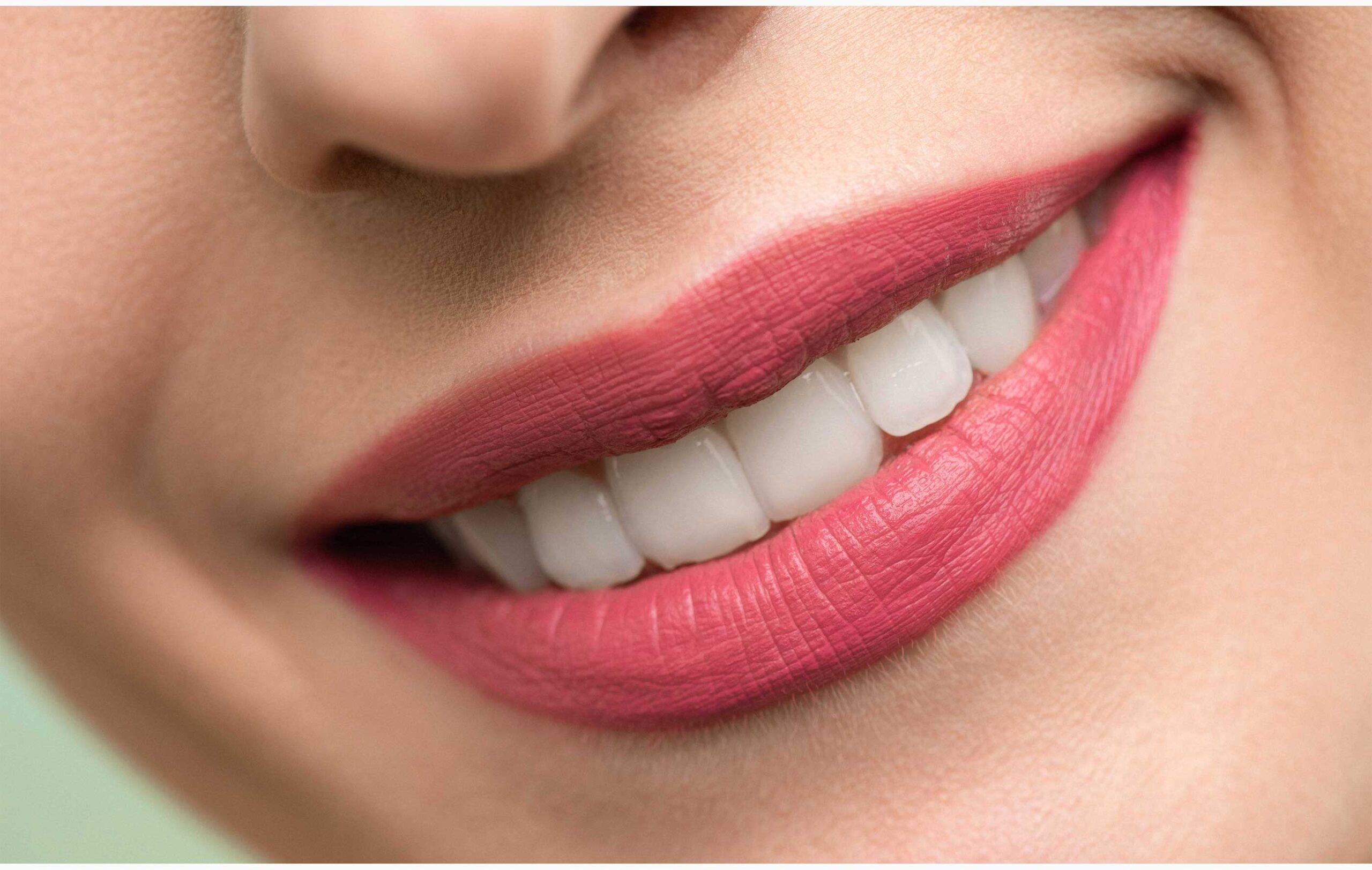 Perfect Teeth:5 Tips & 10 Food For Perfect Teeth
