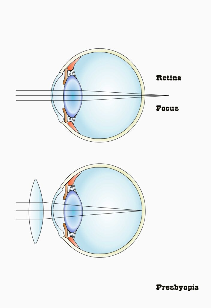 presbyopia-appear