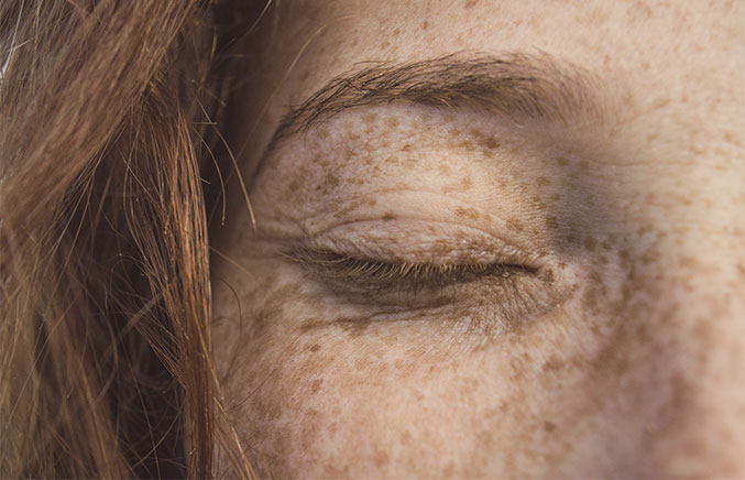 how to get rid of age spots and dark spots